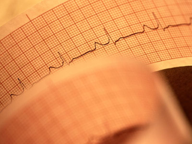 Wearable 'defibrillator-in-a-vest' may help some heart patients