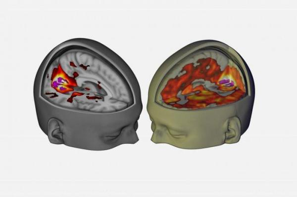 Scans show how LSD affects the brain during use