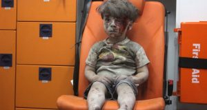 A Wounded Child In Aleppo, Silent And Still, Shocks The World